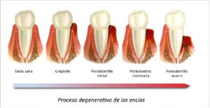 Enfermedades Periodontales Dr Ruiz Villandiego Servicio Odontología Dentista Donostia San Sebastián