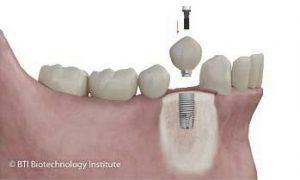 Piezas Dentales Dr Ruiz Villandiego Servicio Odonotología Dentista Donosti San Sebastian