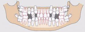Traumatismos Dentales Doctor Villandiego Servicio de Odontologia Dentista Donostia San Sebastian