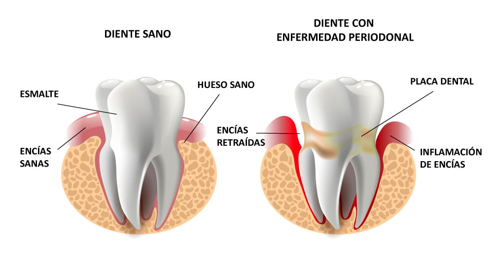 ENFERMEDAD_PERIODONTAL encias periodoncia dentista donostia san sebastian hospital quiron doctor ruiz villandiego servicio odontologia estomatologia gipuzkoa