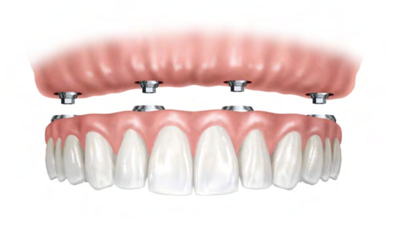 Implantes servicio de odontologia y estomatologia doctor ruiz villandiego hospital quiron donostia