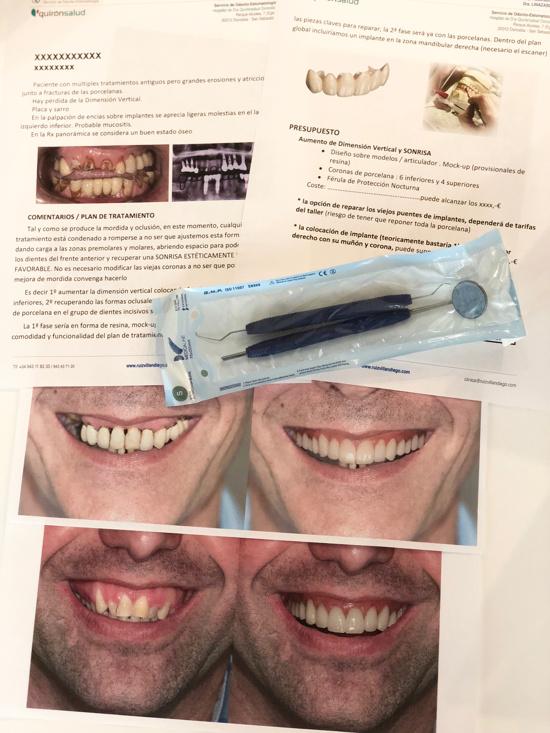 Informe Ruiz Villandiego Servicio de Estomatologia Dentista Donostia San Sebastian Hospital Quiron