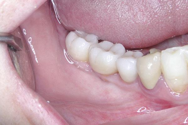 PAret implantes dentista urgencias gipuzkoa donostia san sebastian doctor ruiz villandiego 24 horas hospital quiron