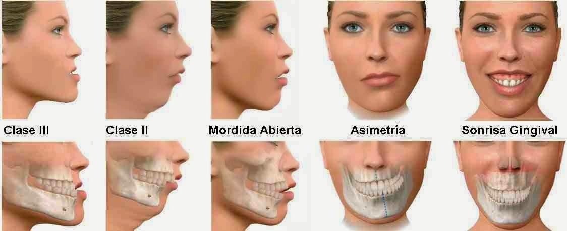 cirugia maxilofacial hospital quiron doctor ruiz villandiego dentista donostia san sebastian gipuzkoa urgencias 24 horas